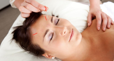 Acupuncture Treatment in Aurora